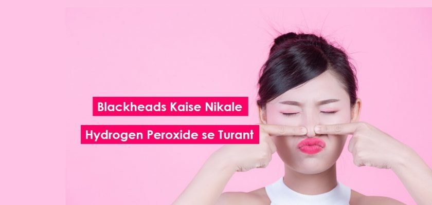 blackheads-kaise-nikale-hydrogen-peroxide-ke-saat-blackheads-se-pareshan